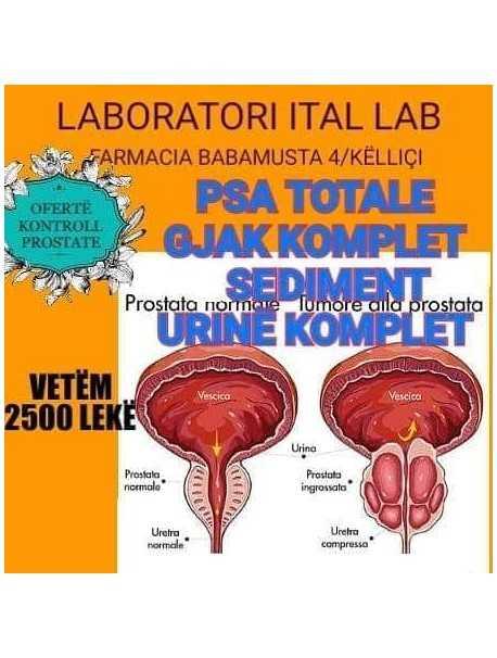 LABORATORI ITAL LAB- KONTROLL PROSTATE